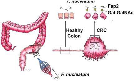 利用人样品和模式小鼠,研究人员接着发现位于梭杆菌表面上的fap2蛋白