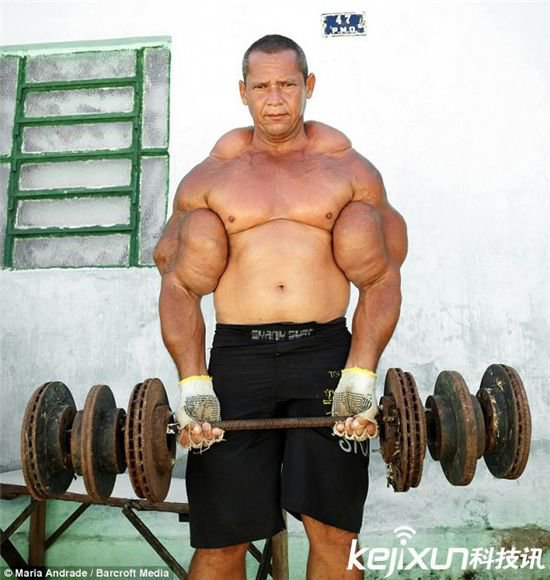 据国外媒体报道,巴西健美运动者为增加肌肉用可能致命的油和酒精混合物给自己注射,正面临死亡危险。 阿林多-德索萨把填充剂注入身体,现在有29英寸(约合74厘米)的二头肌,这在巴西是最大的。他的这种做法会让肌肉膨胀,但德索萨承认它会造成危险的传染病。有些人对手臂做了截肢手术,还有些人不幸身亡。    德索萨说:我朋友保利尼奥也这样做过,但不幸的是他死了。其实,以前我已经感觉到他的死亡。他注射,我也注射,但他超出限制。我建议别用这种油。我不再用这种东西,其他的也不用。我常想再给自己注射,但我设法控制住了。直到今