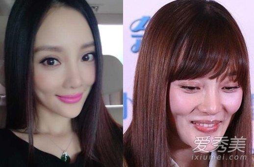 素颜皮肤暗淡,牙齿也不够整齐,刘亦菲淡妆和素颜照都很显老.