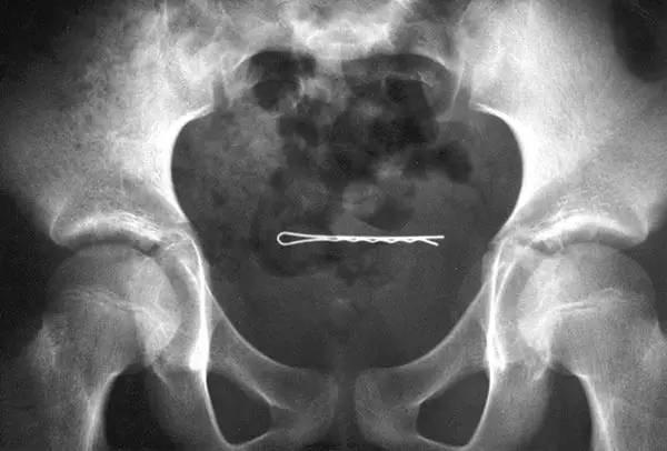 尿道结石怎么排出